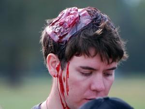 фото перелом свода черепа